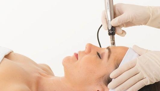 Dermapen (Skin Needling) or Dermasweep (Microdermabrasion) at Preface Cosmetic